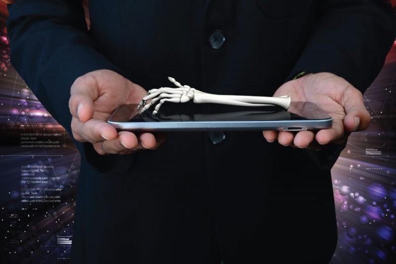 3D Printed Bone