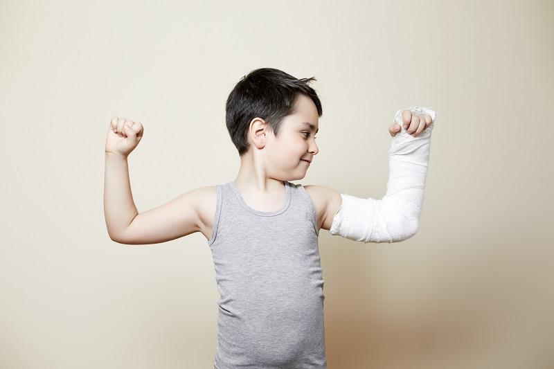 broken bones arm cast